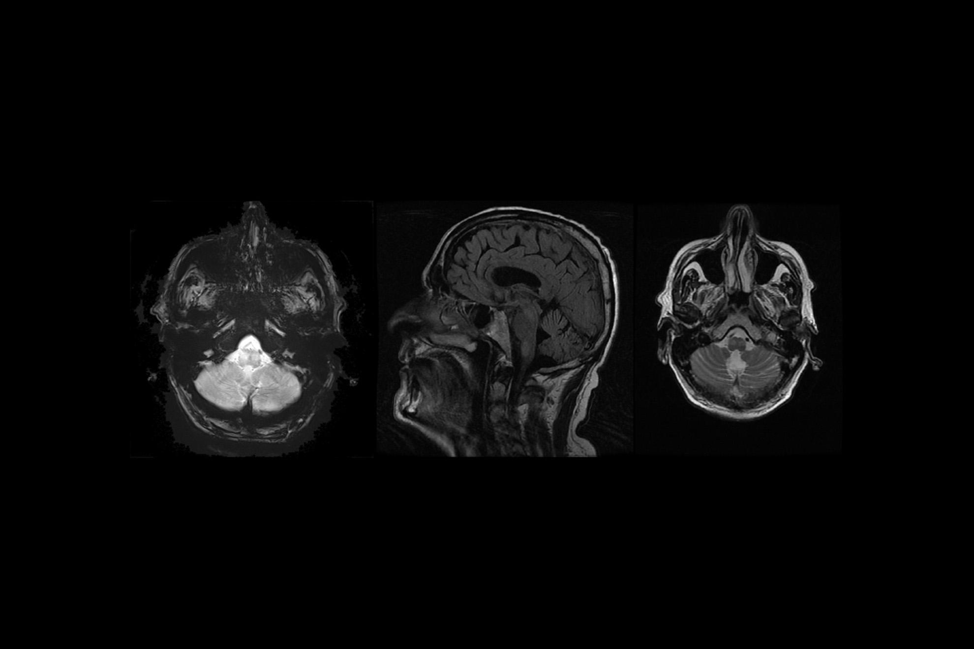 Rencontres de neurologie 2018